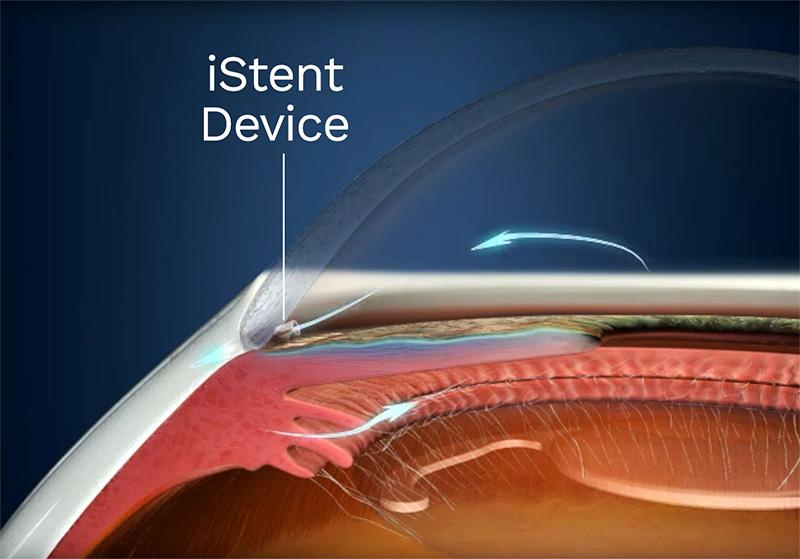 istent جراحی چشم